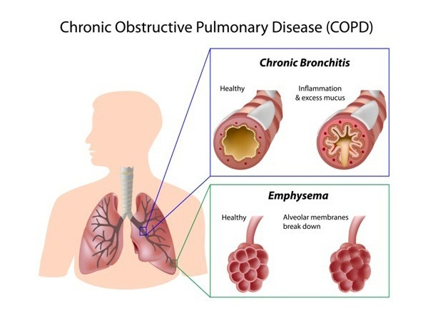 Understanding COPD - Chronic Bronchitis and Emphysema