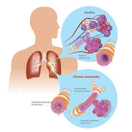 Chronic Bronchitis Symptoms, Causes and Treatment