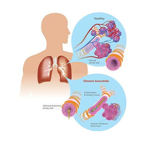 Acute Bronchitis Symptoms, Causes and Treatment