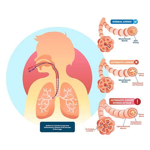 Asthma Symptoms, Causes and Treatment