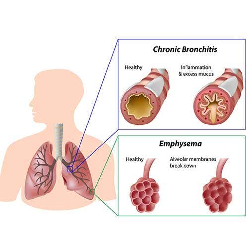 COPD Bronchitis Symptoms, Causes and Treatment