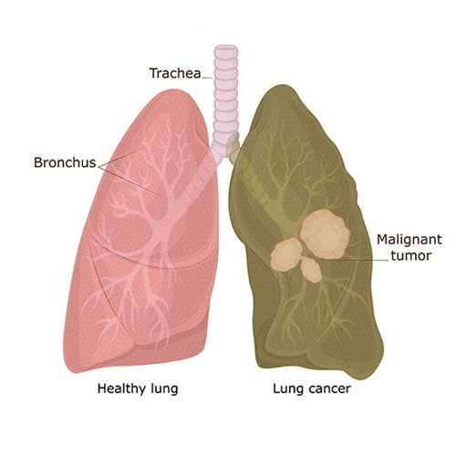 Lung Cancer Symptoms, Causes and Treatment