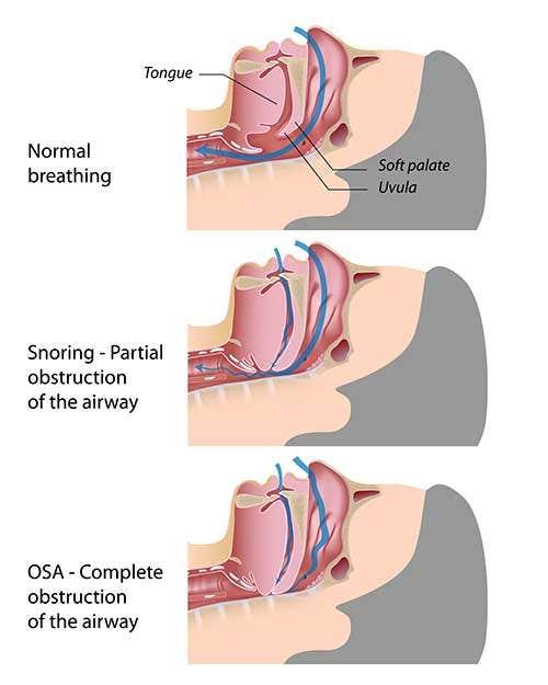 Sleep Symptoms, Causes and Treatment
